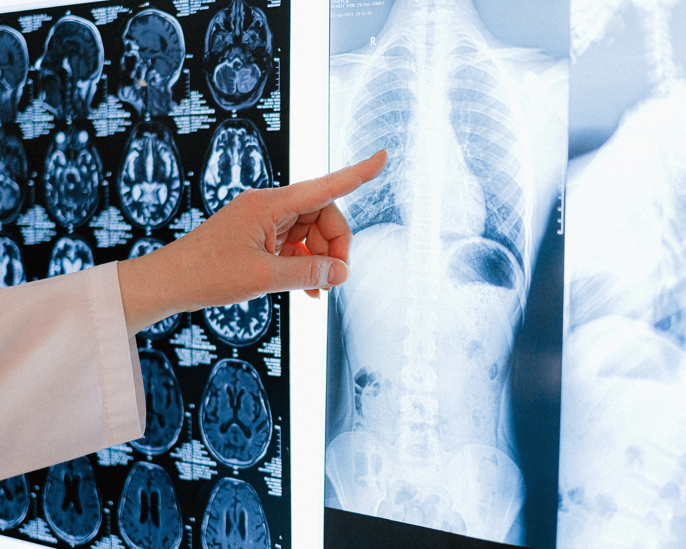 Doctor wearing a white coat pointing to a spinal x-ray - Spitzer Legal Serious Injury Practice Area